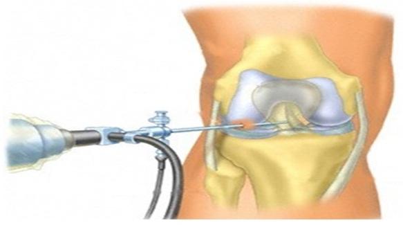 Артроскопическая менискэктомия коленного сустава в нижнем тагиле после операции на тазобедренный сустав отзывы